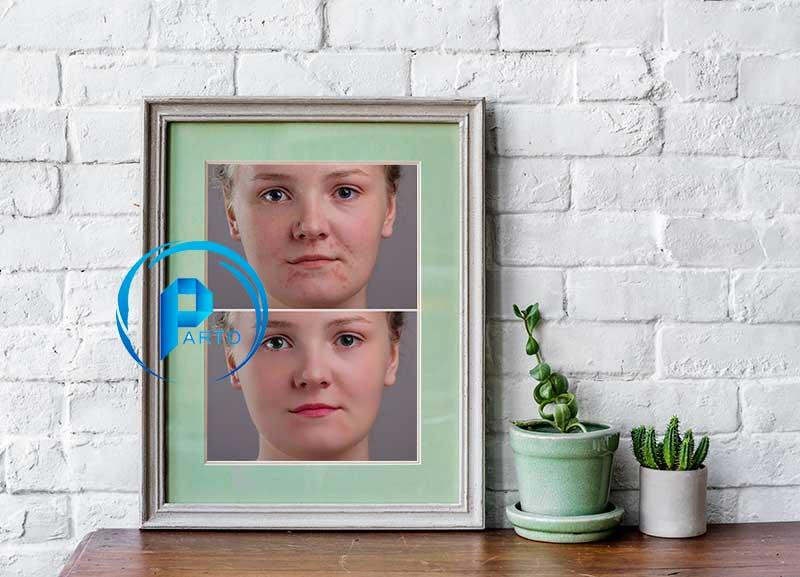 face-rotosh